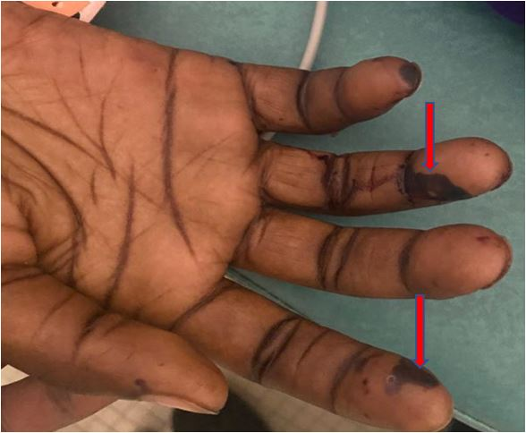 Infectious Endocarditis with Major Cutaneous Expression: About A Case