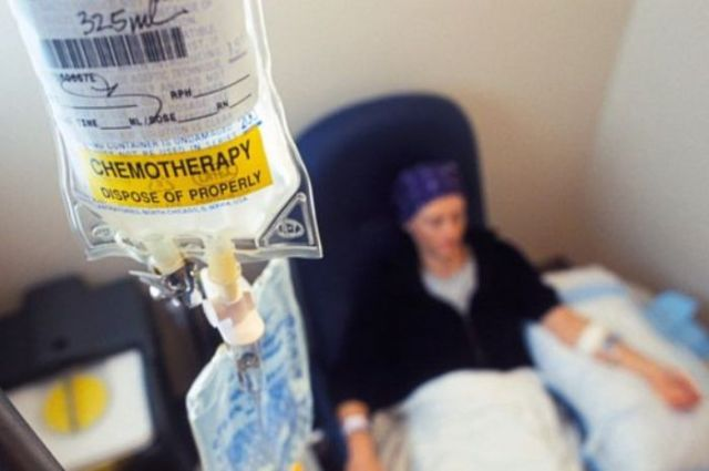 Kenali 6 Efek Samping yang Bisa Terjadi Akibat Lakukan Kemoterapi