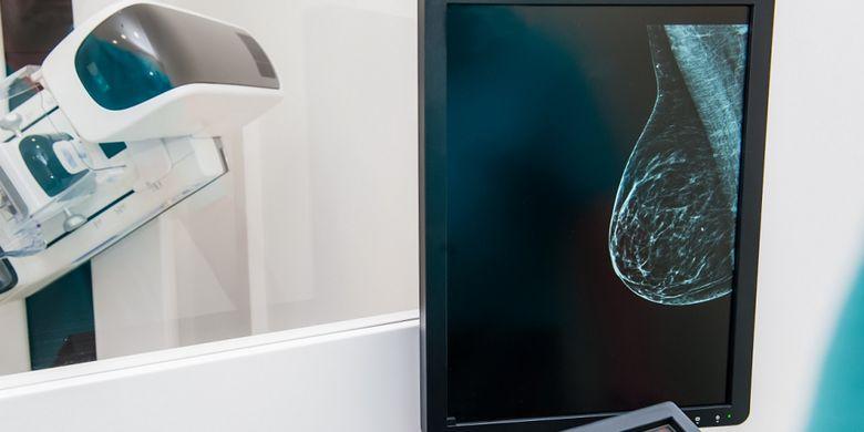 Ilustrasi mamografi