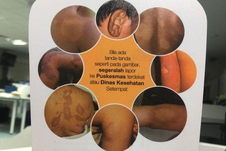 Ilustrasi informasi tentang ciri awal kusta yang harus diwaspadai.