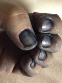 Indigo blue fingernails.