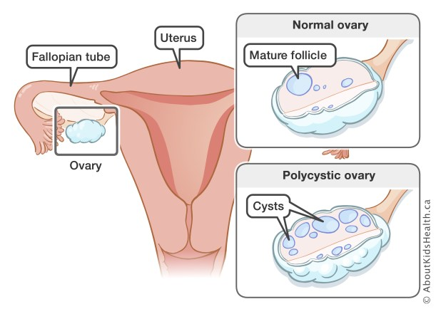 Image result for polycystic ovarian syndrome