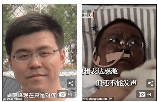 Chine/coronavirus : deux médecins deviennent noirs après que le virus a endommagé leur foie (photos)