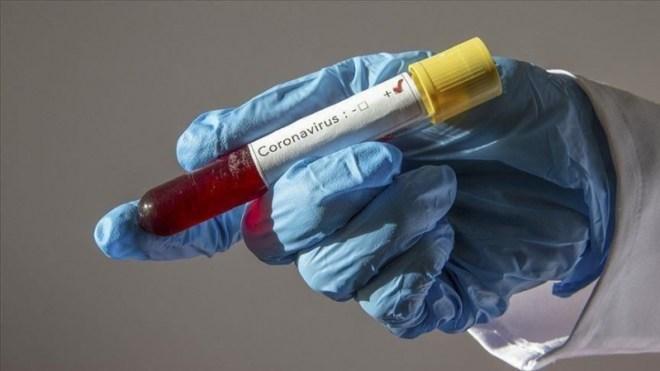 الحالات الحرجة تراجعت لـ376 والرياض تتصدر إصابات كورونا الجديدة بـ44