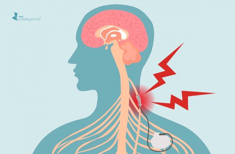 7 طرق لتحفيز العصب المبهم لمكافحة الالتهاب والاكتئاب والصداع النصفي (1)