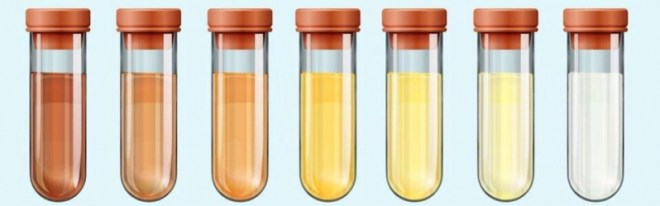 لون البول يحدد خلل مستوى الماء في الجسم
