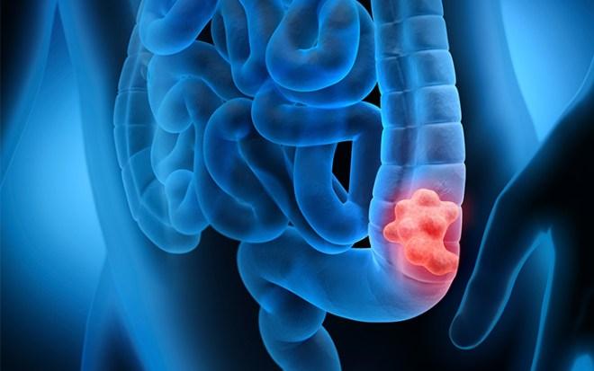 هل يمهد القولون العصبي لمرض السرطان؟