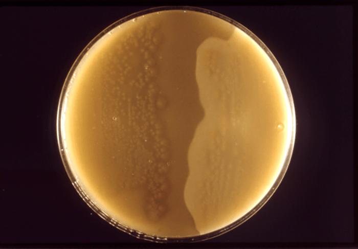 Colonies Clostridium Shape
