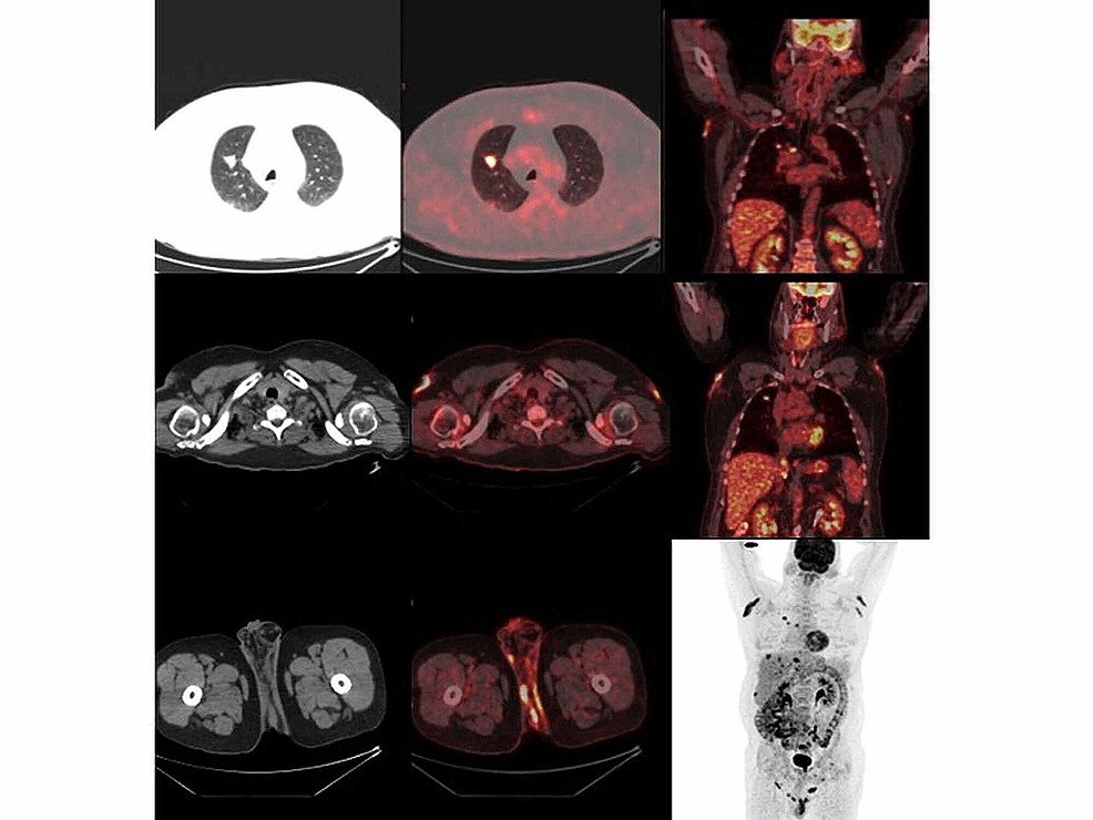 Primary-tumor-in-lung-and-lesions-in-axillary-and-perianal-region-with-increased-FDG-uptake-