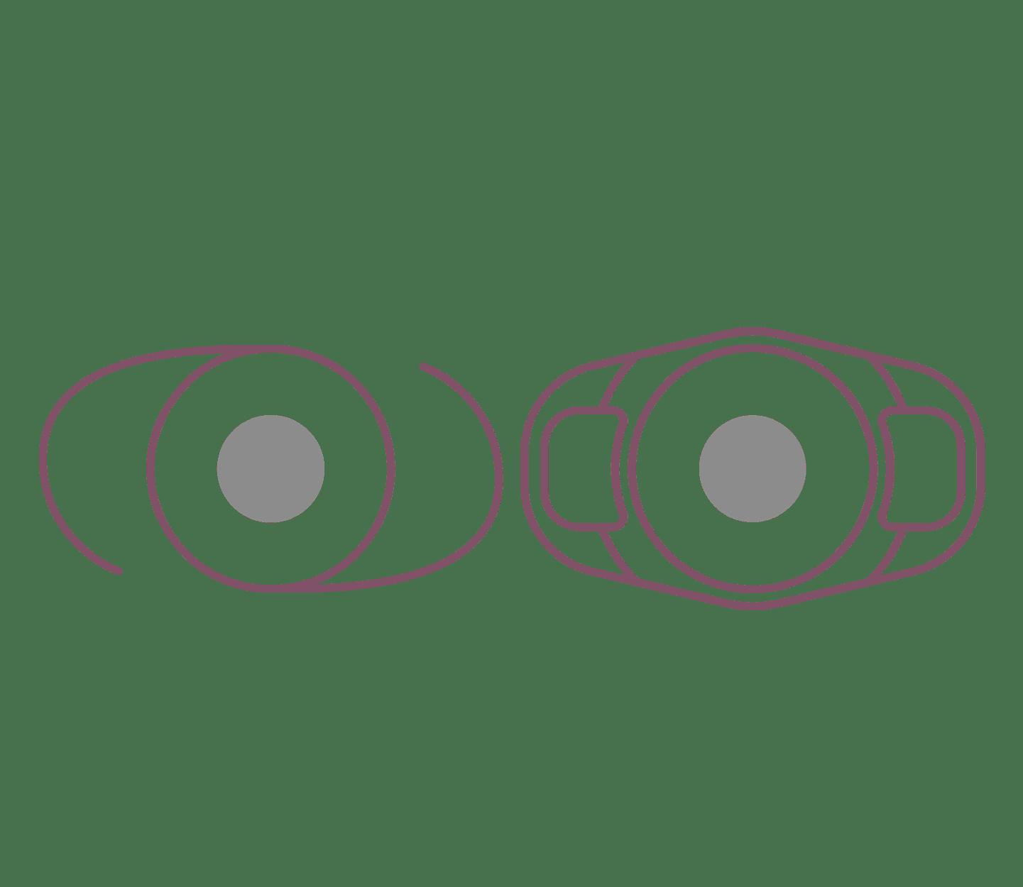 Keys To Quality Cataracts Surgery