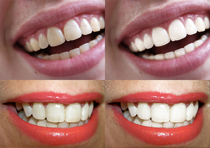 action 056 'Teeth Whitening'