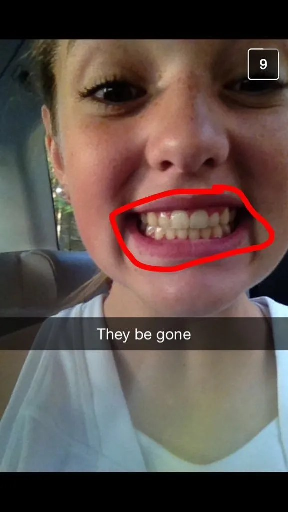 20 Things That Happen When You Get Your Braces Taken Off