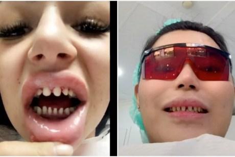 """TikTok Dentists Warn Against the """"Veneers Check"""" Trend - PAPER"""