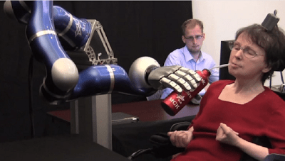 prosthetic-arm-robot-640×363.png