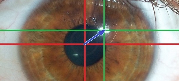 image showing how eye tracking works: Near-infrared light is directed toward the center of the eyes (pupil) causing visible reflections in the cornea (outer-most optical element of the eye), which are tracked by a camera.