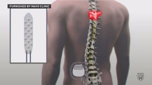 An image showing an electrode inserted in the middle of a person's spine.