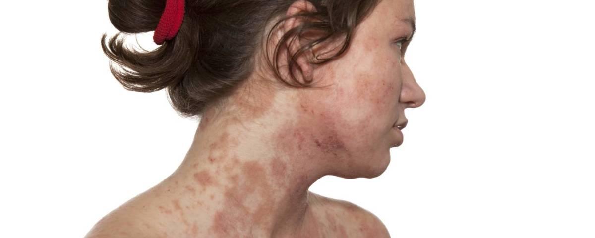 ECLA : étude sur la dermatite atopique de l'adulte