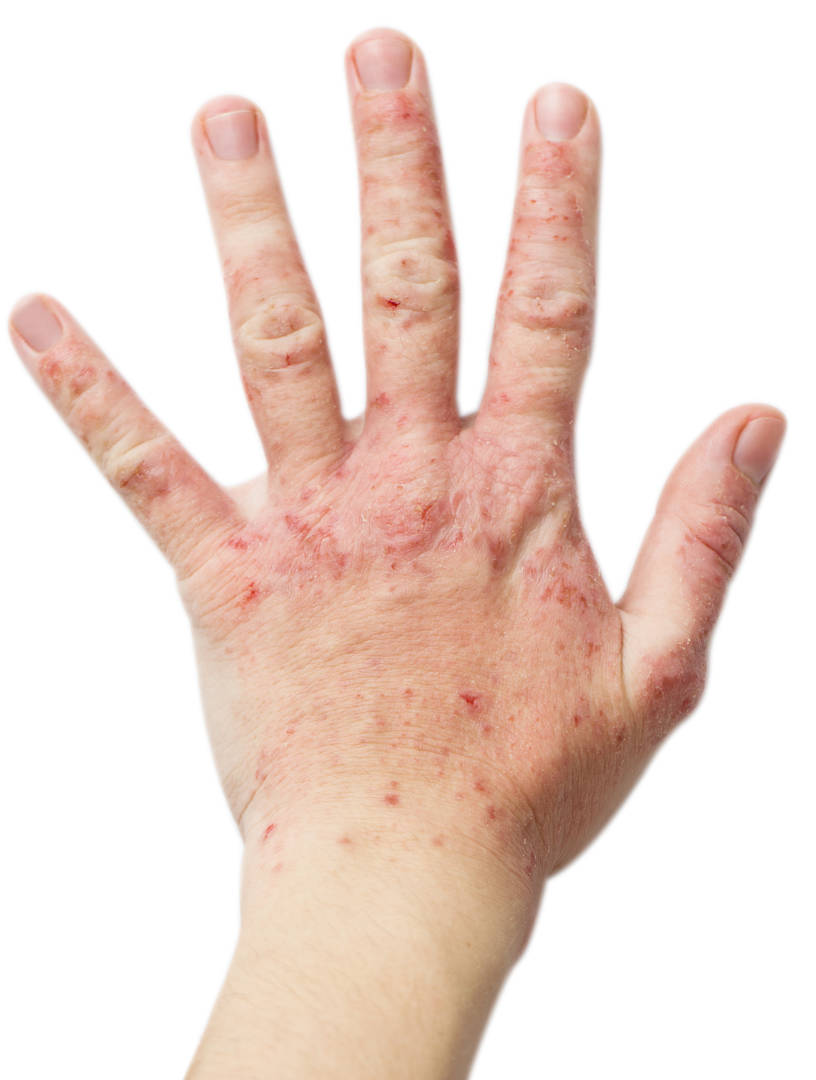 remede eczema main