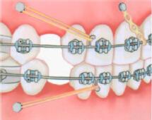 Ставят ли брекеты на коронки и зубы с пломбами? — Про исправление прикуса и брекеты