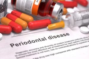 The dental office does well to impress the seriousness of periodontal disease when having discussions with patients
