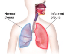 My Asthma and Pleurisy