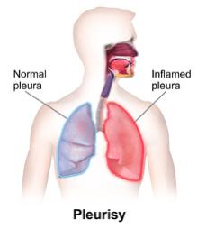 My Asthma and Pleurisy