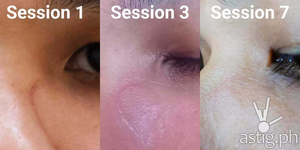 Photos showing the progression of laser scar removal treatment after 7 sessions
