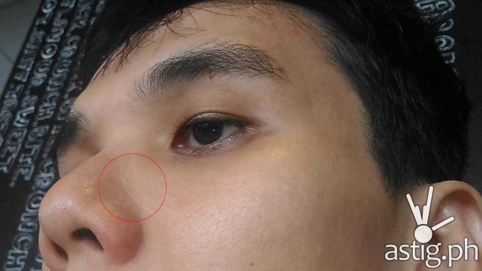 Unedited photo showing the area treated by laser scar removal after 10 months