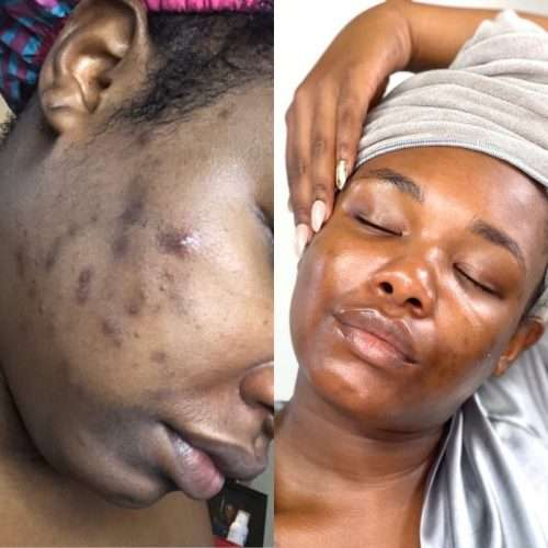 Adult acne before and after