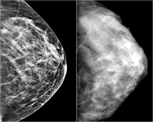 Faktorët e rrezikut të kancerit në gji