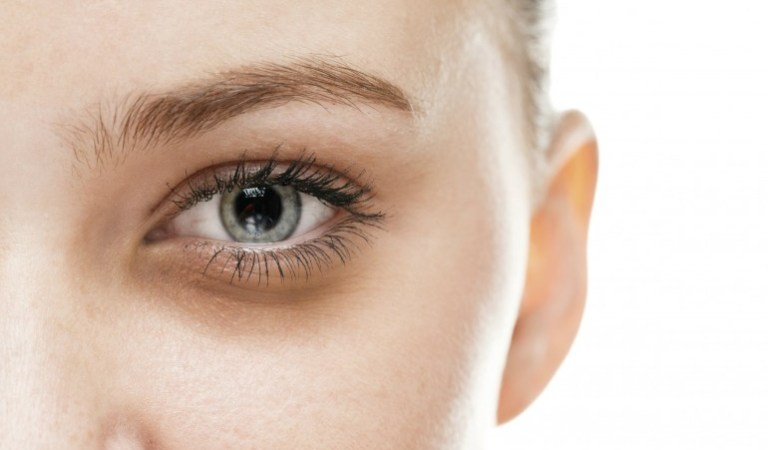 8 Surprisingly Common Things That Cause Dark Circles Under Your Eyes