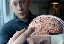 شريحة المخ