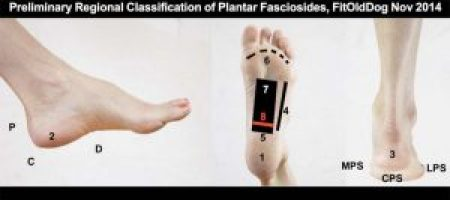 plantar fasciitis exploratory research