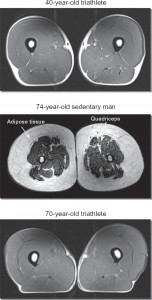 MRI images of thigh region to show effect of exercise on muscle mass.