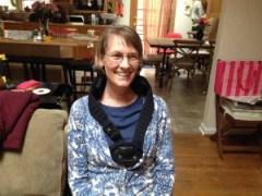 Stacey wearing a bone growth stimulator