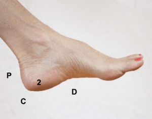 30-second plantar fasciitis cure for pain in area '2' of FitOldDog's plantar fasciitis distribution map.
