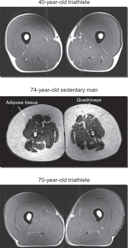 ironman with vascular disease, three mri scans
