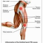 Running Pains: My ITBS Vanished, Ironman Mile 13