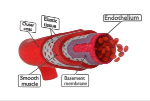 mechanism of abdominal aortic aneurysm