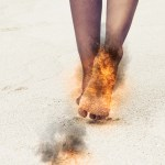 Feet On Fire: Symptom Of Abdominal Aortic Aneurysm?