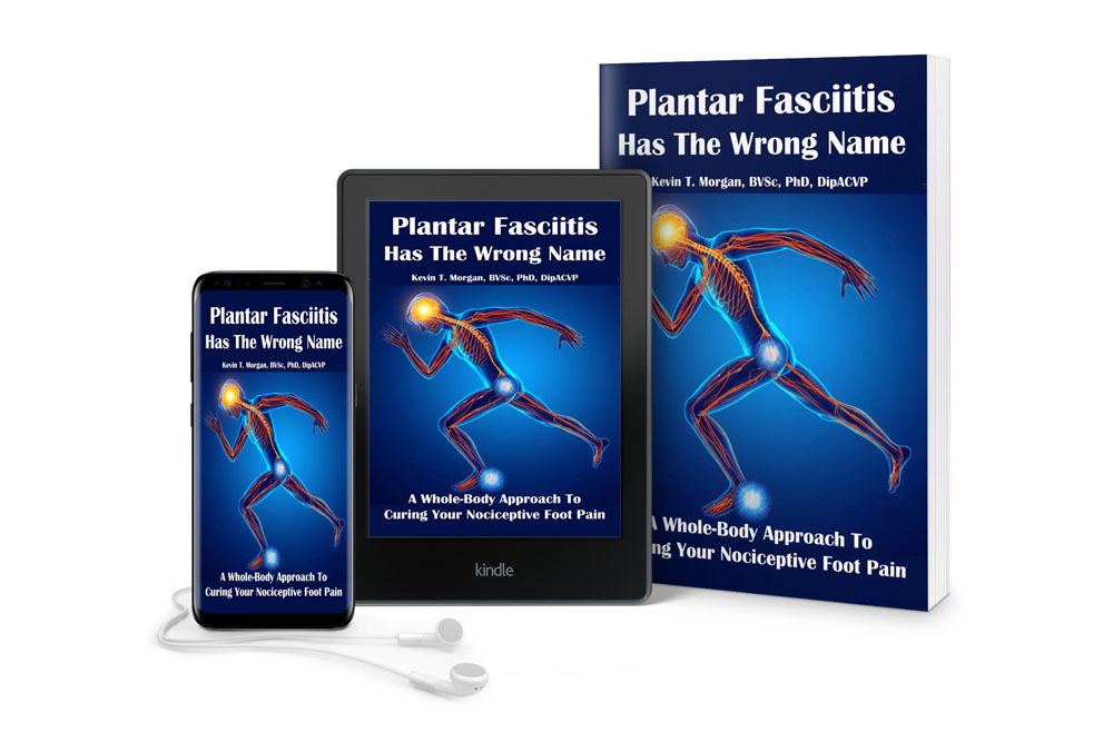 plantar fasciitis has the wrong name