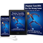 plantar fasciitis insight