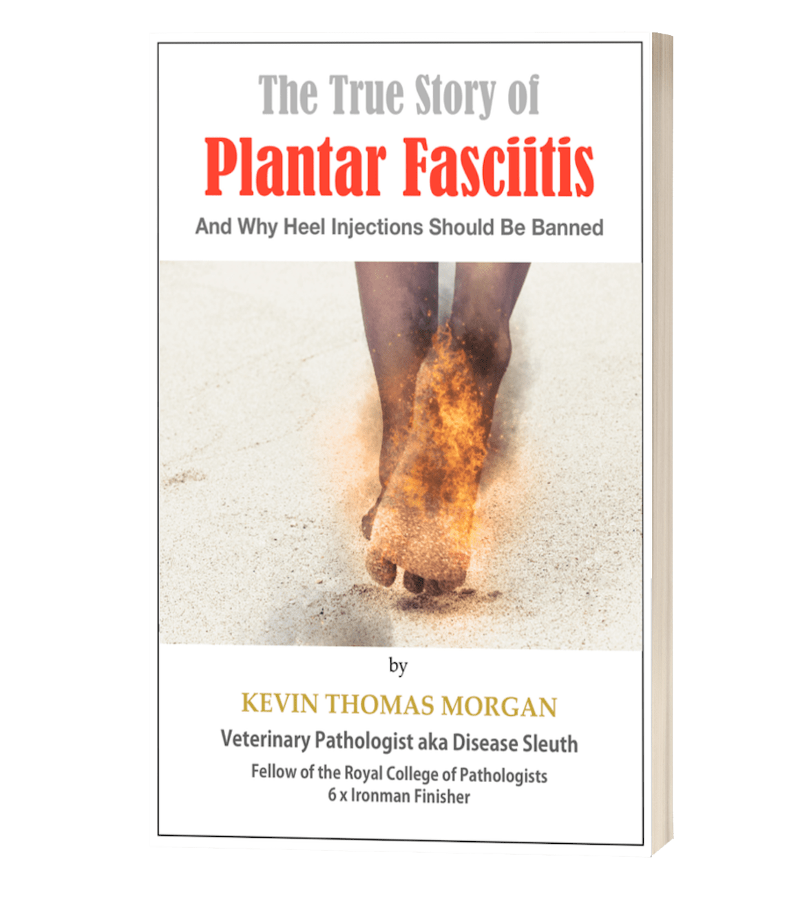plantar fasiitis treatment