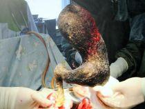 Operatie inedita: 4 kilograme de par gasite in stomacul unei adolescente