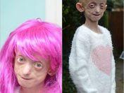 O fetita bolnava de alopecie a fost obligata de profesoara sa-si dea jos peruca