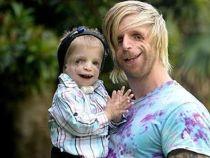 Un barbat cu sindromul Treacher Collins este o sursa de inspiratie pentru bolnavii din lumea intreaga