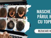 Nanofibre pentru păr Toppik – soluția ideală pentru un părul rar și subțire