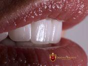 Top 4 lucruri pe care trebuie sa le stii inainte de a-ti pune fatete dentare