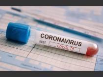 Alte simptome ale infectarii cu noul coronavirus, anuntate de specialisti