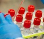 Coronavirus în România: 4.278 de cazuri noi și 77 de decese, în ultimele 24 de ore